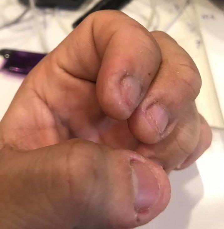 一名網友將自己咬爛的指甲PO上網,並表示只要壓力大就會想咬,就算洗碗時會痛得半死...