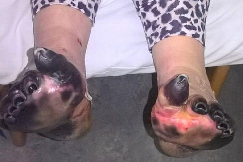 英國一名女子身體出現病狀,原以為只是小感冒,沒想到之後卻感染了敗血症,讓她手腳臉...
