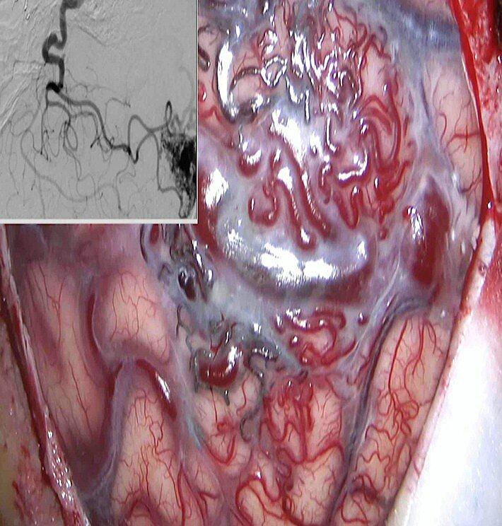 「顱內動靜脈畸形」除部分引發癲癇,沒有外顯症狀,須經相關檢查才能確定。記者周宗禎...