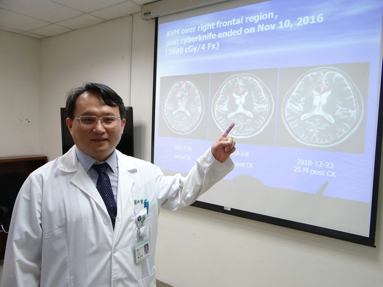 醫師陳志偉指出,「顱內動靜脈畸形」除部分引發癲癇,沒有外顯症狀。記者周宗禎/...
