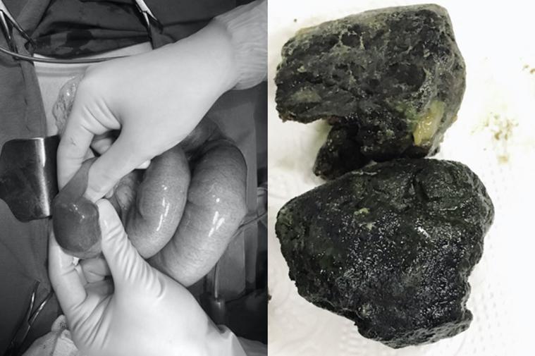 越南一位男子因為天天喝珍奶,導致腹痛嘔吐,送醫後腸胃取出2大塊像黑礦石的珍珠塊。...