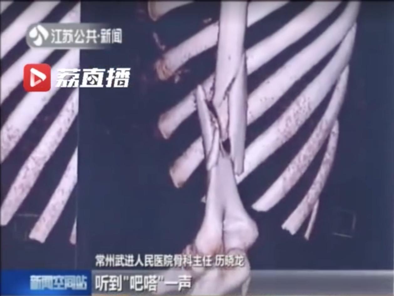 大陸一名21歲男子與朋友比腕力,結果卻因為用力過猛,導致手臂骨頭斷成兩截。圖擷自...