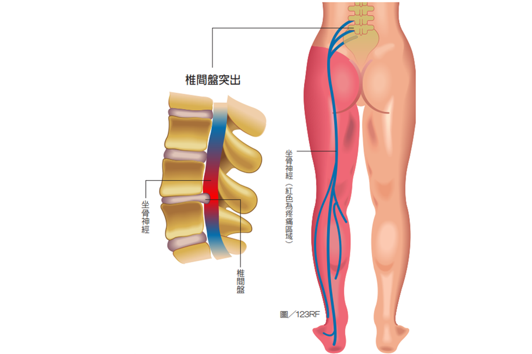 坐骨神經痛坐骨神經由第四、第五腰椎及前三條薦椎匯集而成,常見疼痛原因為椎間盤...