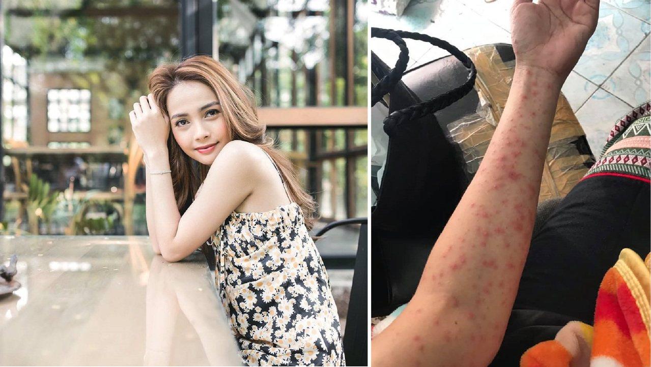 日前一名泰國妙齡正妹,因為經常熬夜加上長期失眠,因此全身長滿密密麻麻的紅疹。圖擷...