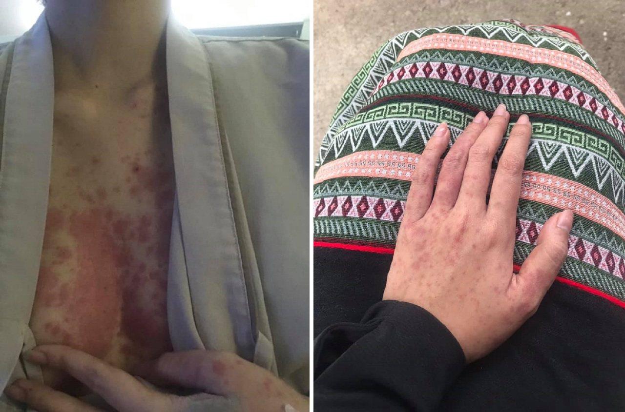 妙齡正妹因為長期熬夜,全身長滿可怕的紅疹。圖擷自ToqTaeq Kerdmee ...