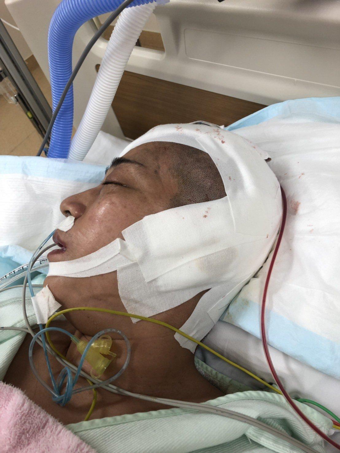 台中市婦人張翊湄(右)在日本不幸腦血管瘤破裂,累積上千萬元的醫藥費無力支付,台中...