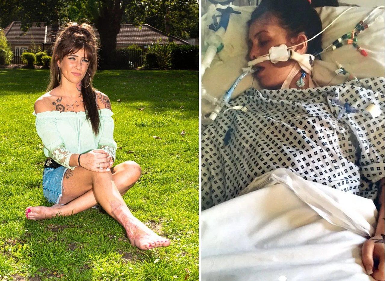 日前英國一名25歲女子,在自家花園做家事時被蚊子叮咬,不料竟演變成壞死性筋膜炎,...