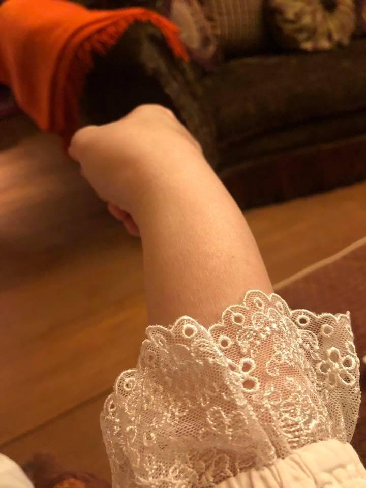 陳文茜自曝右手如癱瘓中風。 圖/擷自陳文茜臉書