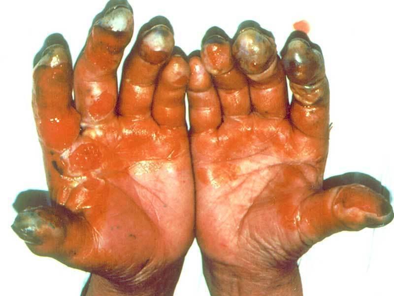 遭到氫氟酸侵蝕的皮膚將會嚴重壞死。圖/台北榮總臨床毒物科提供