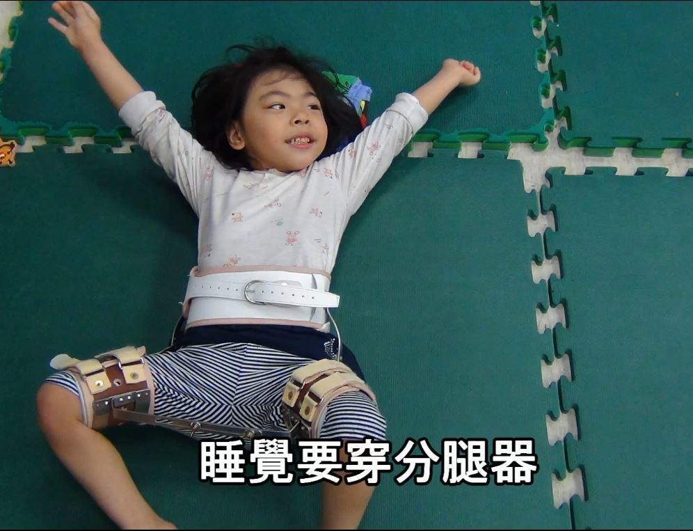 怕髖關節變形,柔柔睡覺也要穿分腿器。圖/第一社福提供