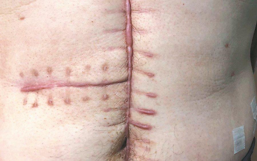 醫師提醒有蟹足腫體質者,手術後若未好好照顧傷口,容易導致惡化。 記者張曼蘋/攝影