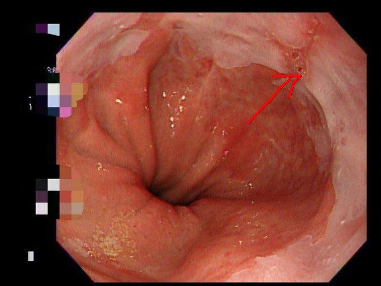 胃食道逆流患者 在胃鏡檢查下發現一點鐘方向的紅色線就是典型症狀。圖/安南醫院提供