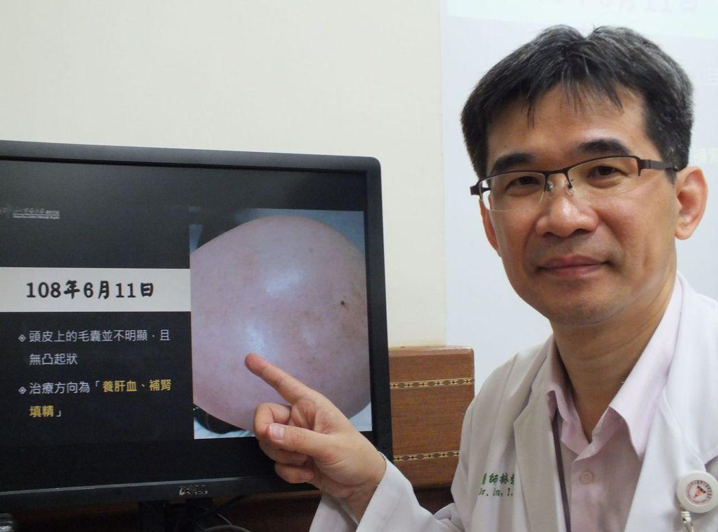 醫師林榮志說明,這名粉領族經2個月中藥調理搭配穴位按摩、快走,頭皮的毛囊出現軟毛...