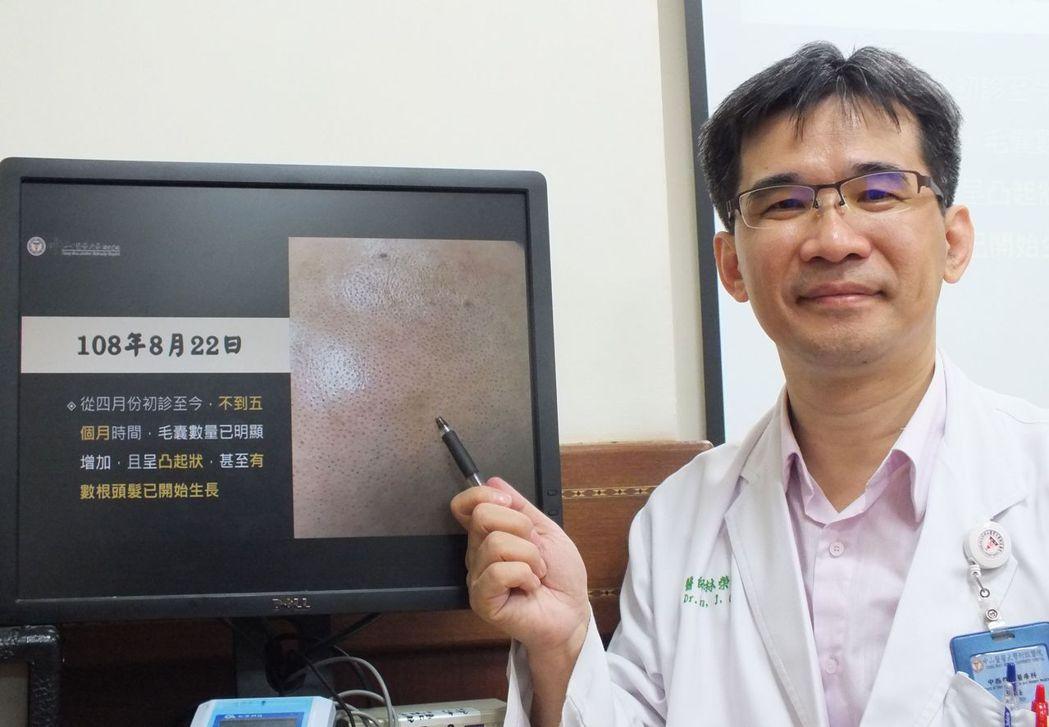 醫師林榮志說明,這名粉領族經4個月中藥調理搭配穴位按摩、快走,頭皮的毛囊的毛髮變...