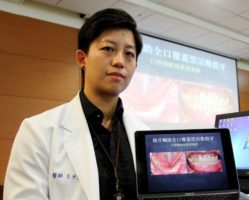 成大醫院口腔醫學部義齒補綴科醫師王少君。圖/成大提供