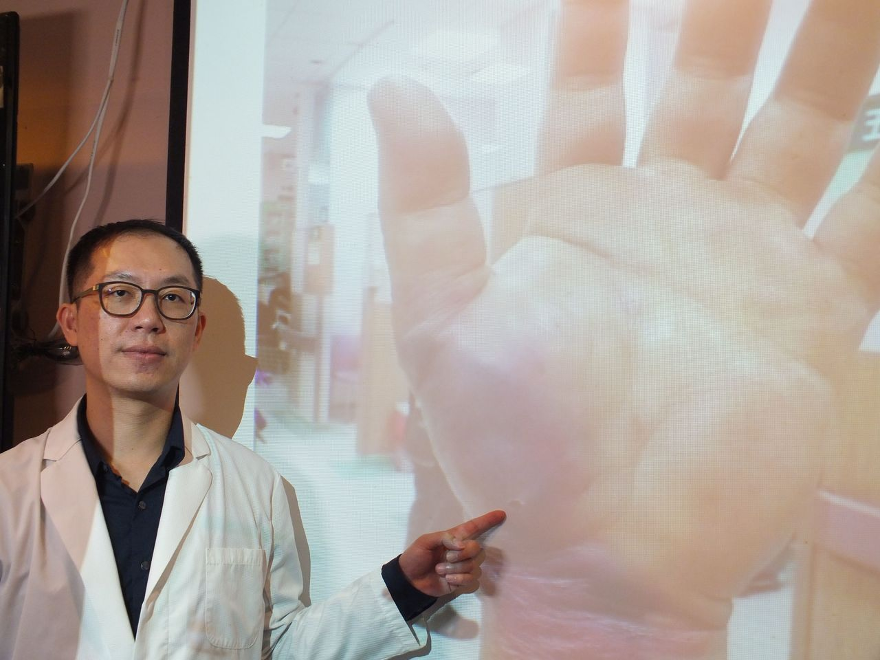 醫師陳彥瑋說明,48歲餐廳老闆左手魚際肌不慎被魚鉤刺到,確診為壞死性筋膜炎,經歷...
