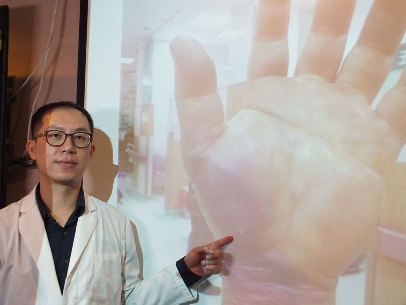 醫師陳彥瑋說明,48歲餐廳老闆左手魚際肌不慎被魚鉤刺到,確診為壞死性筋膜炎,經歷十次清創、重建手術,住院二個月,保住手臂。記者趙容萱/攝影