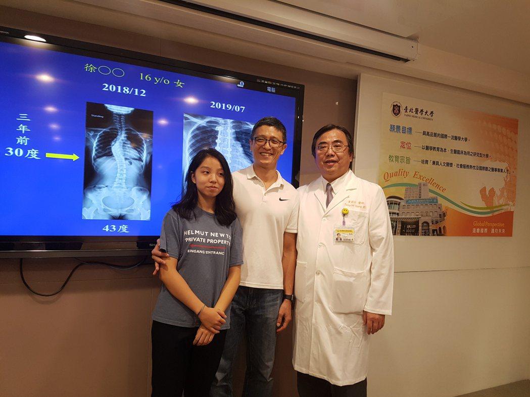 徐小妹經過手術治療後,脊椎側彎才獲得顯著改善。記者楊雅棠/攝影