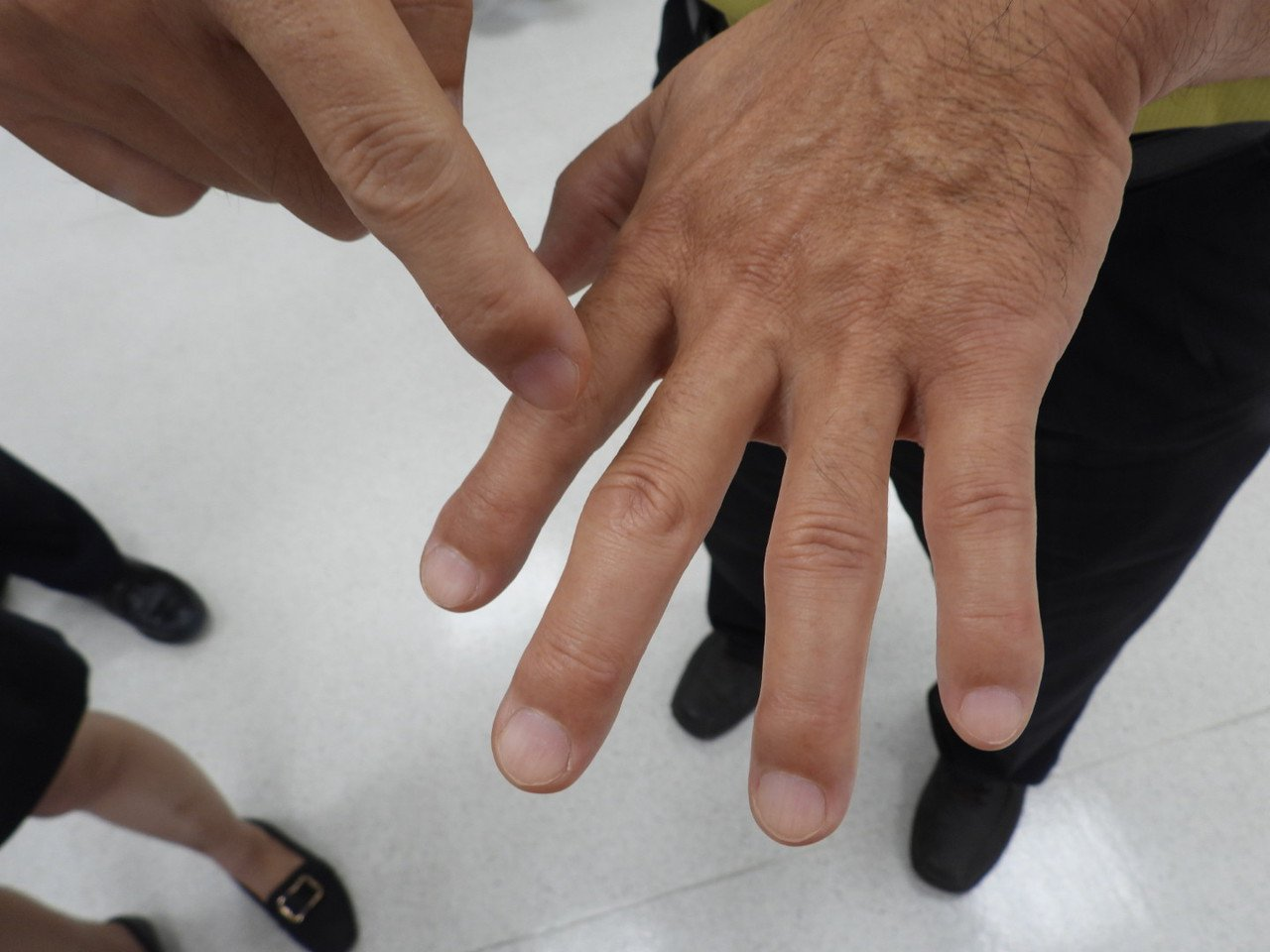 「肢端肥大症」手腳五官可能在幾年內肥大。記者周宗禎/攝影