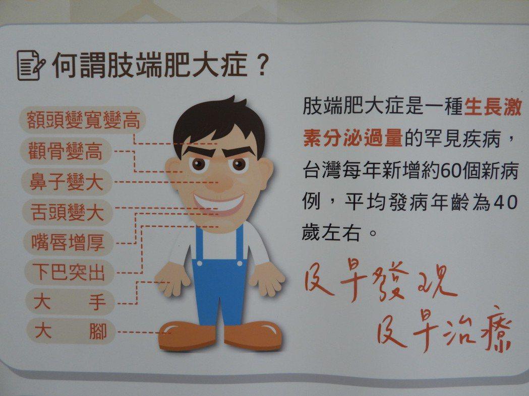 年過40、手腳五官幾年內肥大的人,千萬要留意是否罹患「肢端肥大症」。記者周宗禎/...