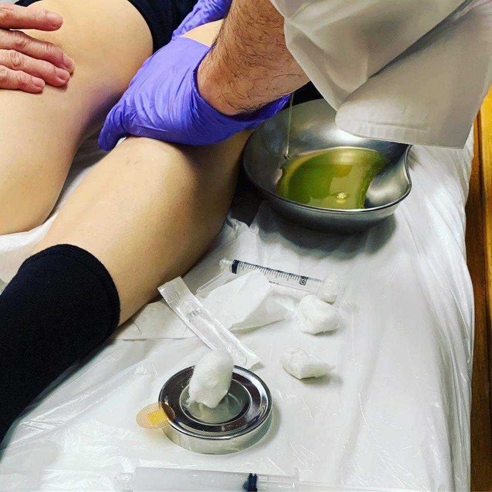 容祖兒膝蓋發炎導致行走不便,經醫生麻醉下雙膝各抽出50c.c積水。圖/摘自臉書