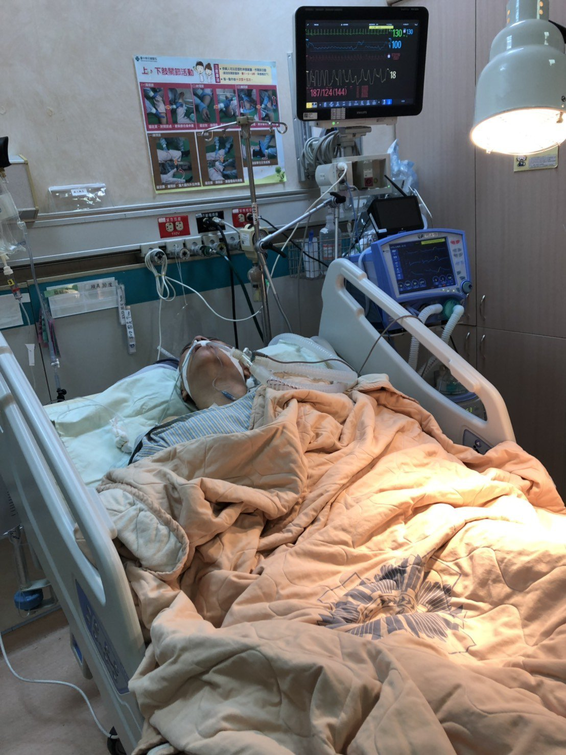 台中市婦人張翊湄昨天下午自日本搭機返回台灣,並由台中榮總醫療團隊立即進行手術。據...