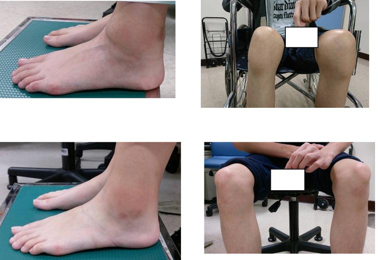 學童、青少年腳踝及膝關節如果持續腫脹疼痛,醫師提醒,這應該不是生長痛、運動傷害,...