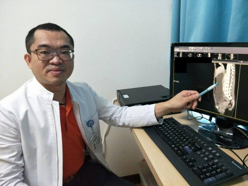 童醫院醫師說明,少女腸阻塞位置和情形。圖/童綜合醫院提供