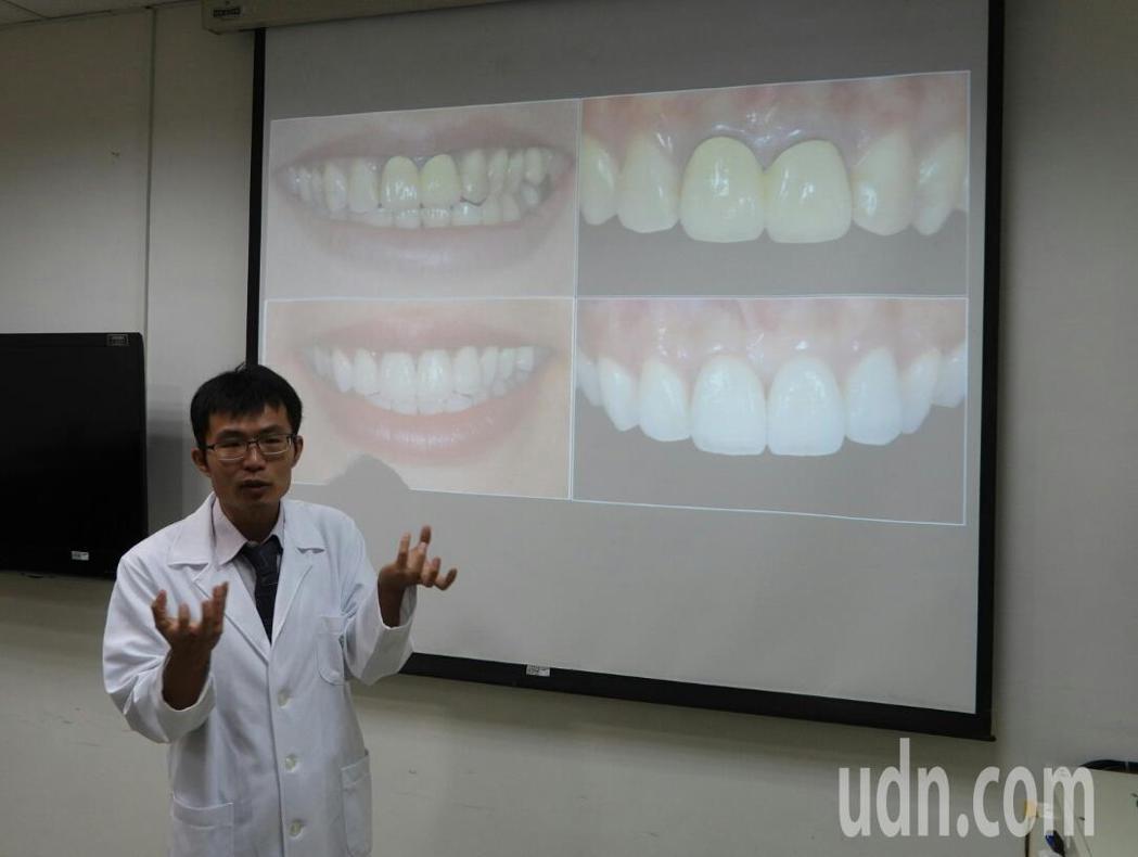 奇美主治醫師鄭智文提醒民眾,含金屬假牙有過敏致癌風險,金屬價暴漲採用全瓷假牙是好...
