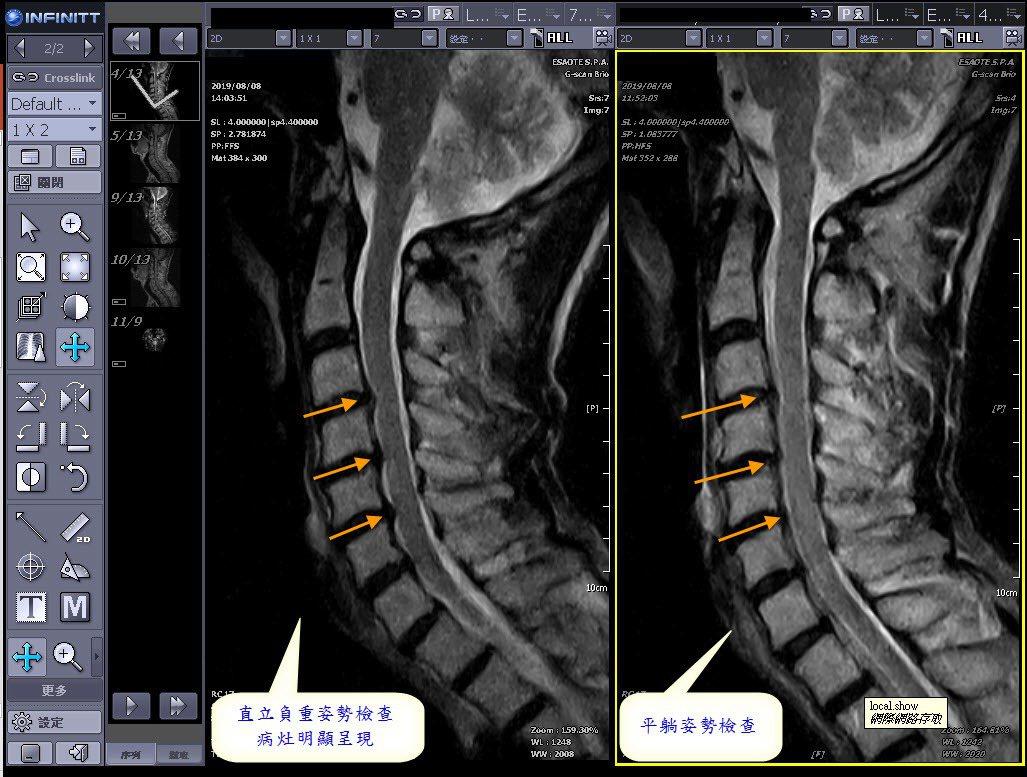 從事科技業的60歲的傅先生,因常緊盯電腦螢幕,長期下來頸椎痠痛、肩膀及手臂麻痛,...