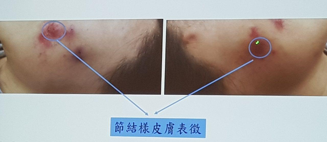 女子進行自體脂肪豐頰手術,結果左右臉都出現治療困難的感染。記者修瑞瑩/翻攝