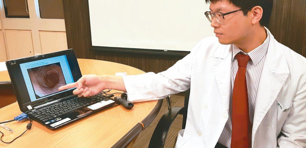 書田診所肝膽腸胃科主治醫師康本初指出,個案胃鏡影像發現胃幽門附近有廣泛發炎,表面...