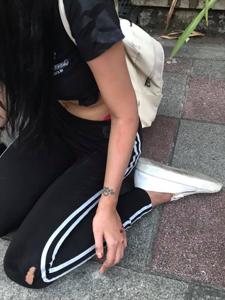 蔡女全身多處擦挫傷。記者柯毓庭/翻攝自臉書