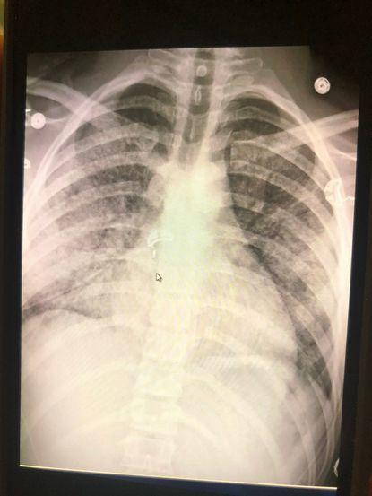 赫根瑞德的胸部X光片,顯示可能因電子菸引起的發炎症狀。醫生表示他的肺部狀況糟如7...
