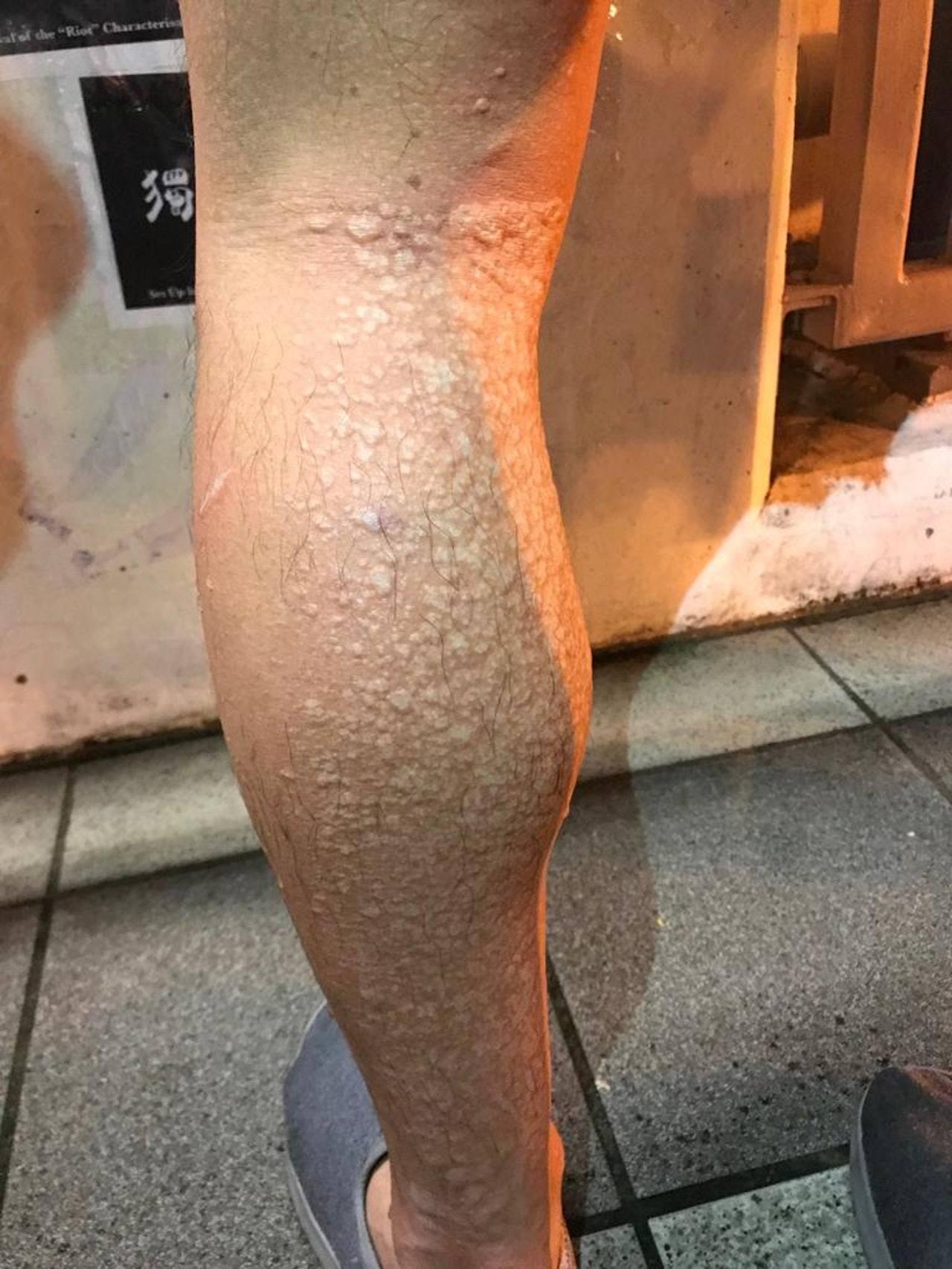 傷者腿部被不明液體濺傷,冒出多個水泡。圖片提供/香港01