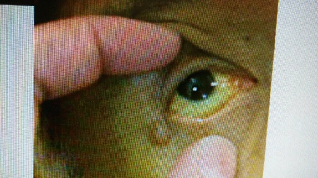 患者眼睛出現黃疸症狀,圖非當事人。圖/台中慈濟醫院提供