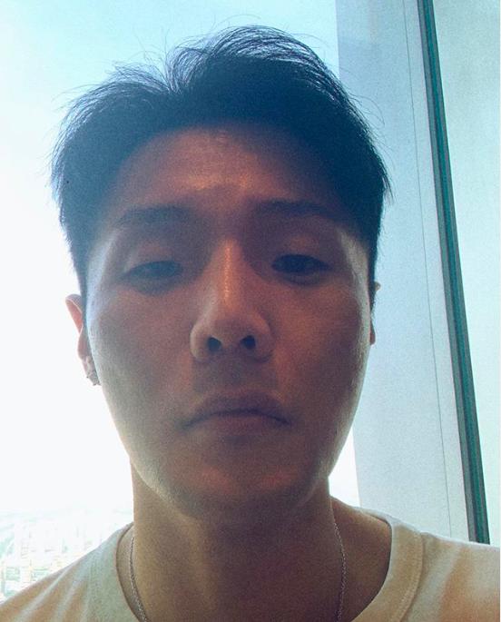 李榮浩唇腫頻被問「上火」。圖/摘自ig