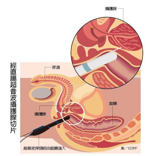 早期攝護腺癌沒有明顯症狀,若發現攝護腺特異抗原(PSA)異常,再配合肛門指診、超...