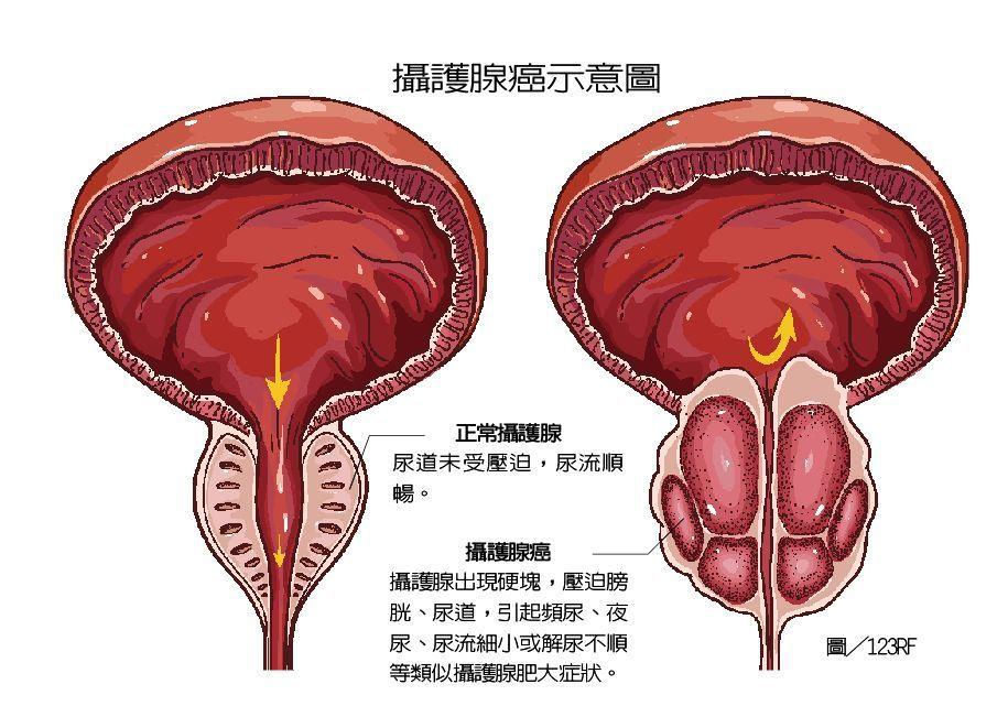 攝護腺癌進展速度緩慢,早期症狀不明顯,當癌細胞慢慢長大、逐漸壓迫到尿道時,才開始...
