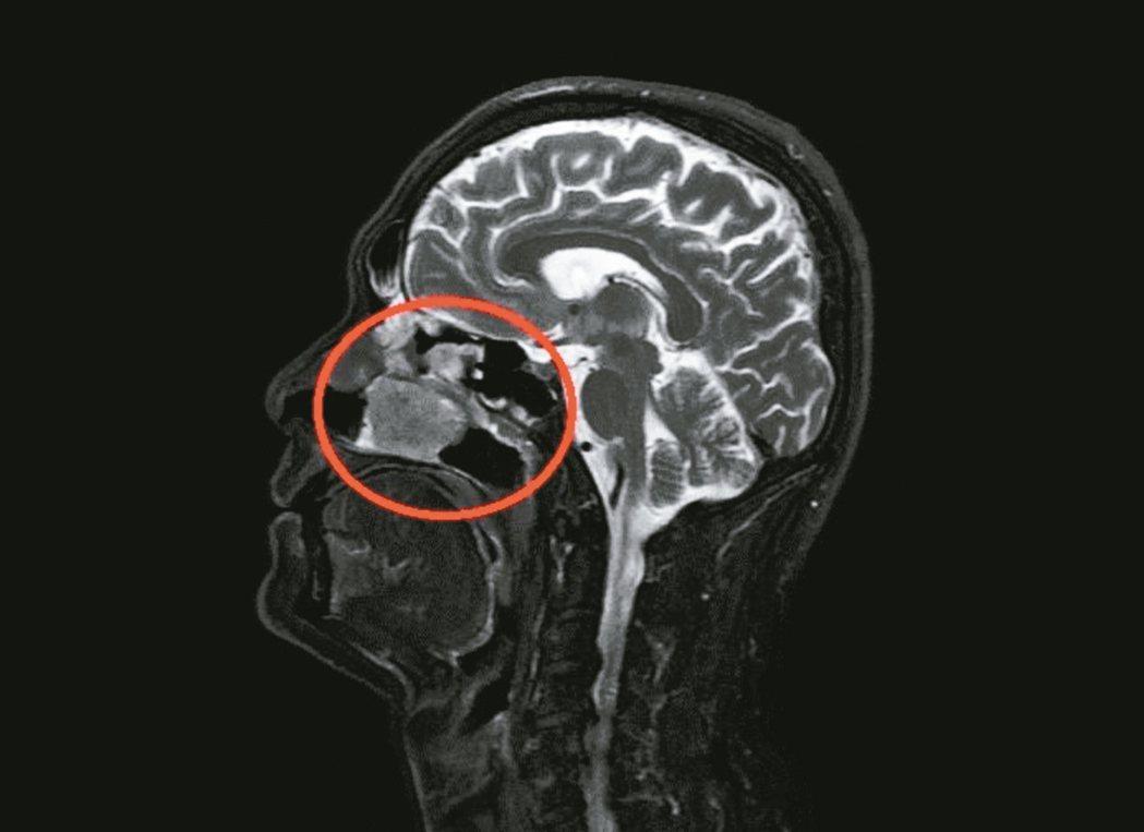 曾姓男子經常鼻塞,就醫檢查紅框處為鼻竇惡性腫瘤把鼻腔塞滿。 圖/南投醫院提供