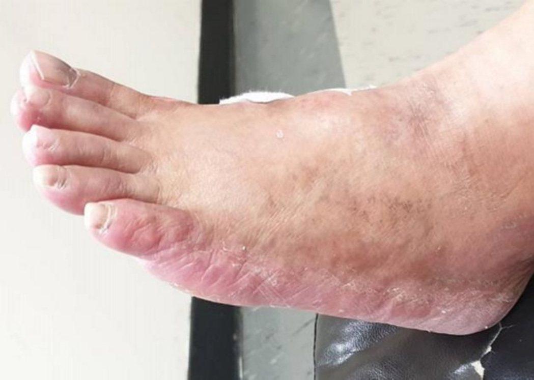 55歲蔣女士接受癌症化療後,出現嚴重手足症候群,最後靠服用「紫草」、「白芨」等中...