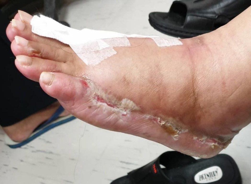 55歲蔣女士接受癌症化療,發生手部皮膚乾裂脫皮,腳部嚴重潰瘍、起水泡、傷口不斷滲...