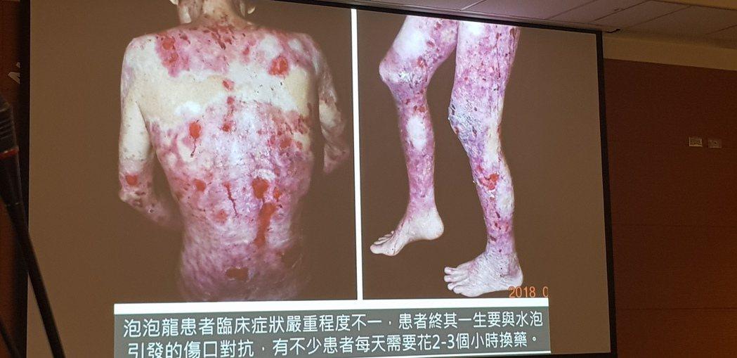 泡泡龍患者全身皮膚潰爛疼痛難耐。記者修瑞瑩/翻攝