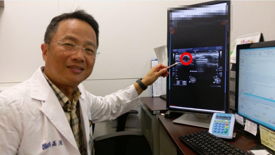 長安醫院乳房外科醫師吳嘉隆說,他切除了含腫瘤約是原乳房4分之1的內容物,隨即進行...