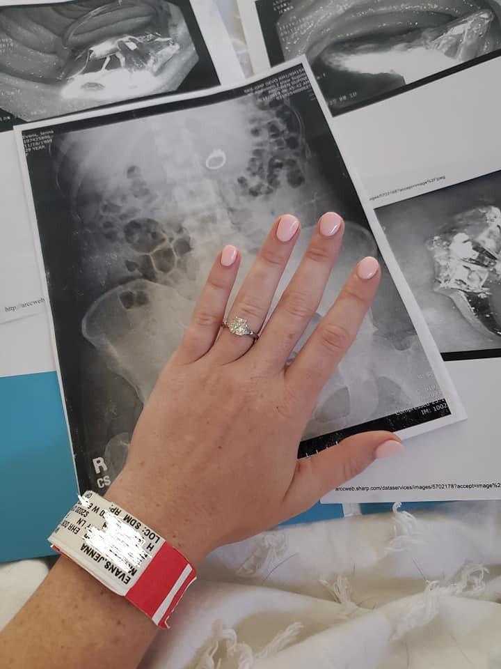 美國一名女子在睡夢中將訂婚戒指吞下肚。取自臉書(@Jenna Evans)