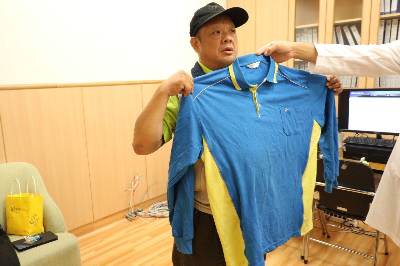 餐廳楊姓主廚體重原破百,經減重後,原來的衣服5L已顯太大。圖/台中慈濟醫院提供