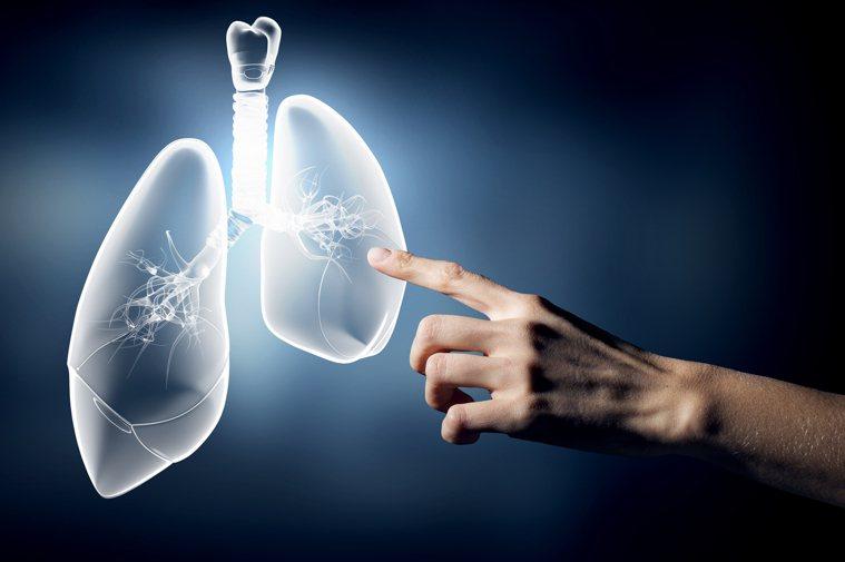 肺癌示意圖/ingimage