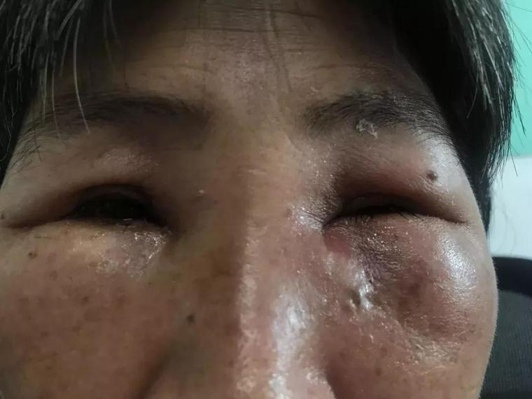 張姓婦人眼睛流膿,罹淚囊炎。圖取自搜狐