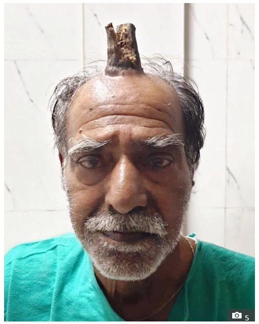 印度男子希亞姆·拉爾·亞達夫(Shyam Lal Yadav)5年前因故跌倒撞到...