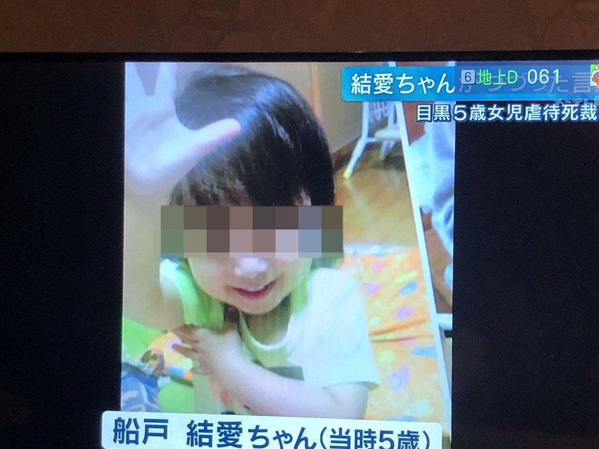 日本東京一名5歲女童船戶結愛慘遭繼父虐待,導致滿身瘀傷及營養不良,死前的體重僅1...